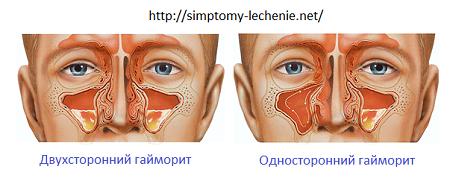 arcüreggyulladás homályos látás