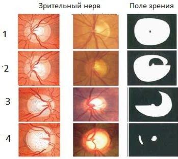 a glaukóma szakasza látómező szerint